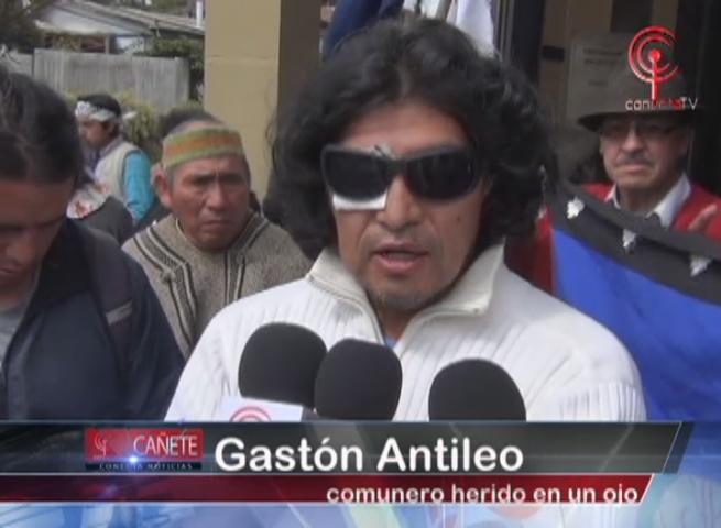 Formalizan en Cañete a comuneros Mapuche heridos en incidente con Carabineros